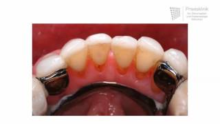 Replacing missing teeth Different dentures and how they work