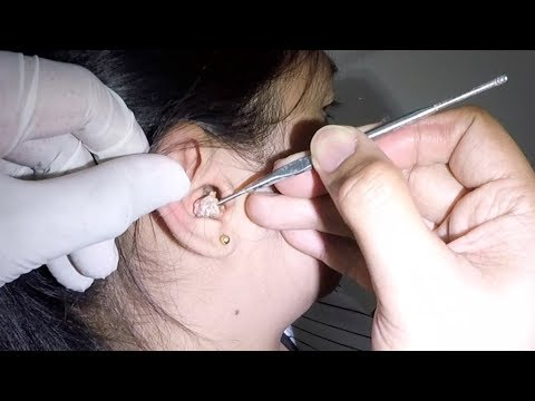 Young Woman's Huge Earwax is Finally Removed- She Seldom Cleans Her Ears