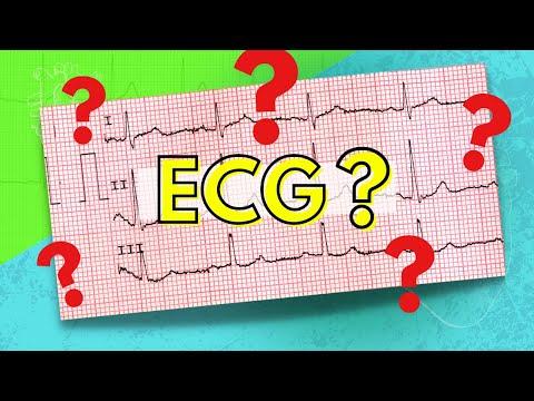 048 How to Read an Electrocardiogram (ECG/EKG)