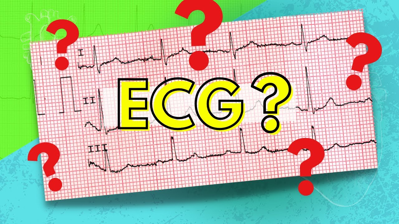 048 How to Read an Electrocardiogram (ECG/EKG) - YouTube