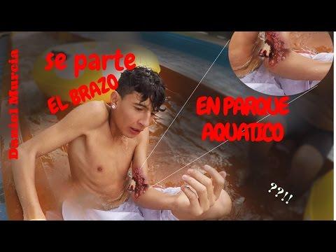 SE PARTIO EL BRAZO ? | parque aquatico COLOMBIA #3 | Ft Daniel Murcia | Eugui Win