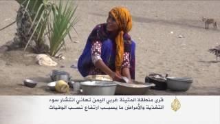 انتشار سوء التغذية بقرى المتينة غربي اليمن
