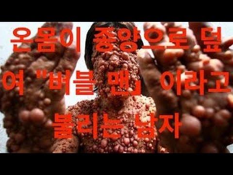 【충격】온몸이 종양으로 덮여 버블 맨」이라고 불리는 남자