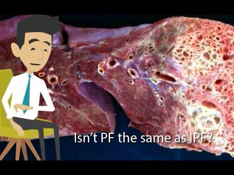 Is Pulmonary Fibrosis The Same As Idiopathic Pulmonary Fibrosis?