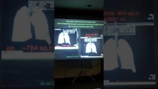 Осложнение после операций на сердце