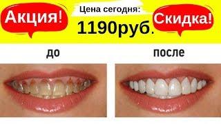 Виниры для зубов. Скидка -50% | Ссылка в описании.