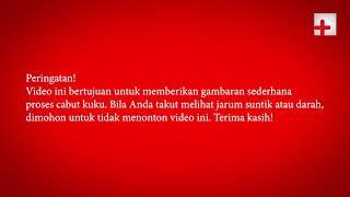 VIDEO INI ADALAH VIDEO EDUKASI KHUSUSNYA UNTUK MAHASISWA KESEHATAN YANG MUNGKIN DIPERLUKAN UNTUK....