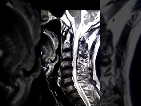 MRI cột sống cổ rỗng ống tủy