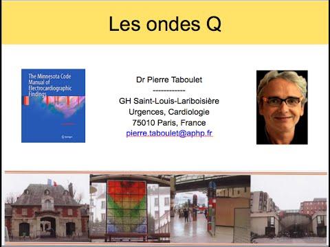 3b les ondes q normales et pathologiques dr p taboulet - Le sel et les ondes negatives ...