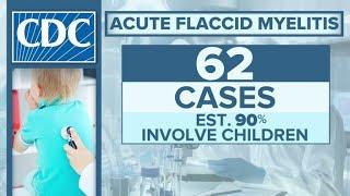 What is acute flaccid myelitis? Doctor explains polio-like illness