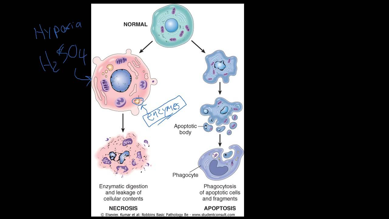 Apoptosis vs Necrosis - Difference and Comparison | Diffen