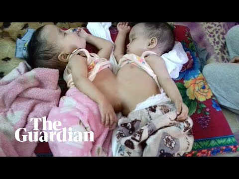 Wingnut - Conjoined Twins Are About To Have Surgery