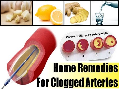 Home Remedy For Clogged Arteries