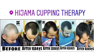 Hair Receeding Growth Treatment By Hijama Cupping Therapy