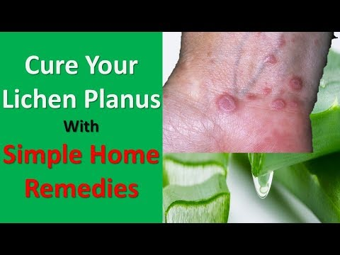 Cure Your Lichen Planus With These Simple Home Remedies