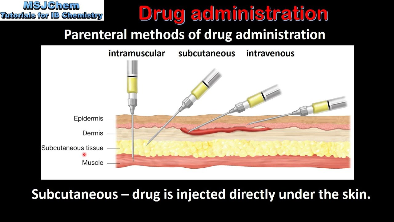Parenteral administration of drugs is like 33