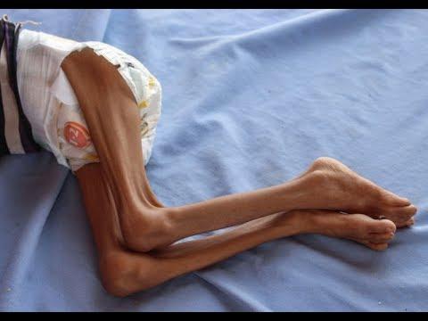 Yemen war: 12 million Yemenis could soon be on the brink of famine