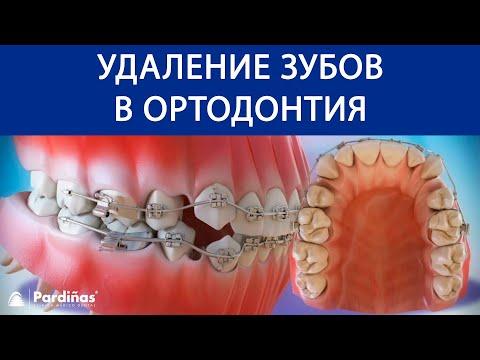 Удаление зубов в ортодонтия ©