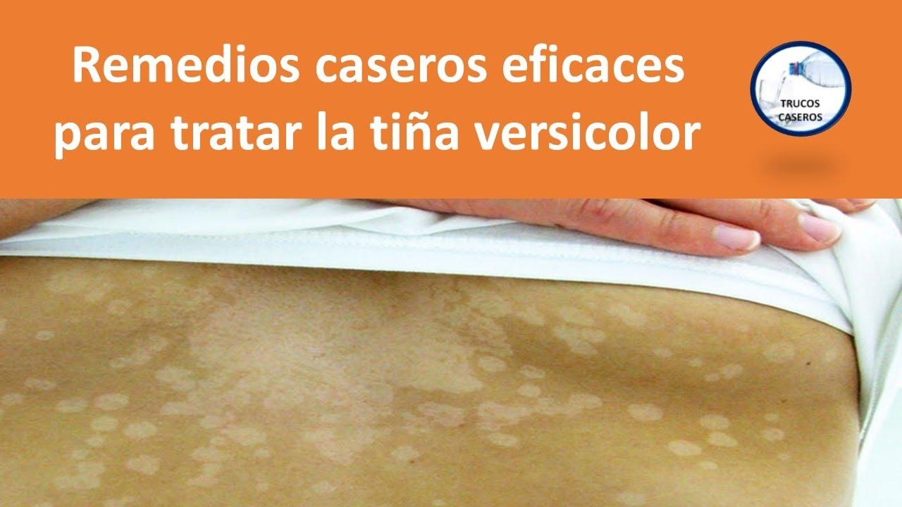 tinea versicolor tratamiento natural