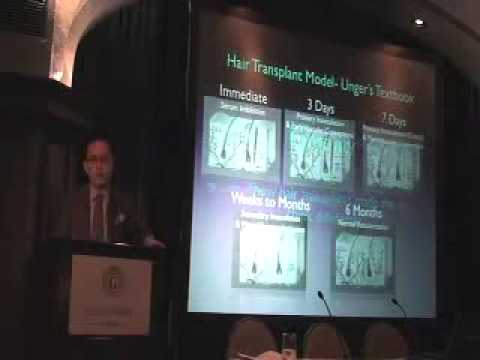 Fat Grafting Thoughts, AAFPRS Aging Face Course, January 20, 2011, San Diego, California