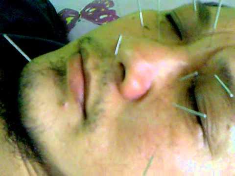 Akupuntur Sinus.mp4