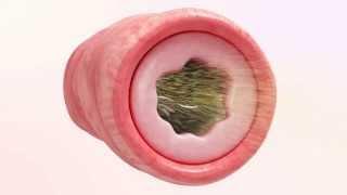 Mukoviszidose-Animation -Pulmozyme
