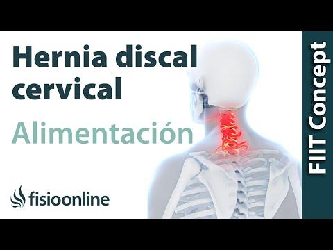Hernia discal cervical