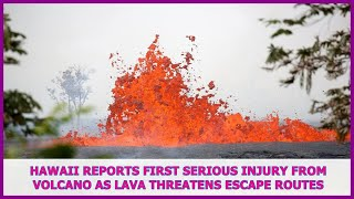 US BREAKING NEWS | Hawaii reports first serious injury from volcano as lava threatens escape routes