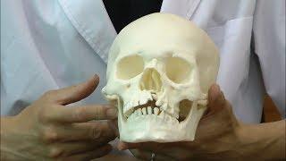 口蓋裂症を持つ男児の頭蓋骨模型│A29/3