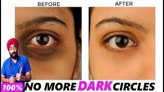 SCIENCE OF DARK CIRCLES : Reason to Remedy | Explained in ENG | Dr.Education