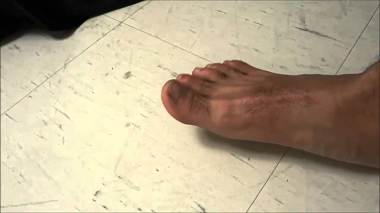 How to crack your toes relieving toe pain youtube solutioingenieria Images