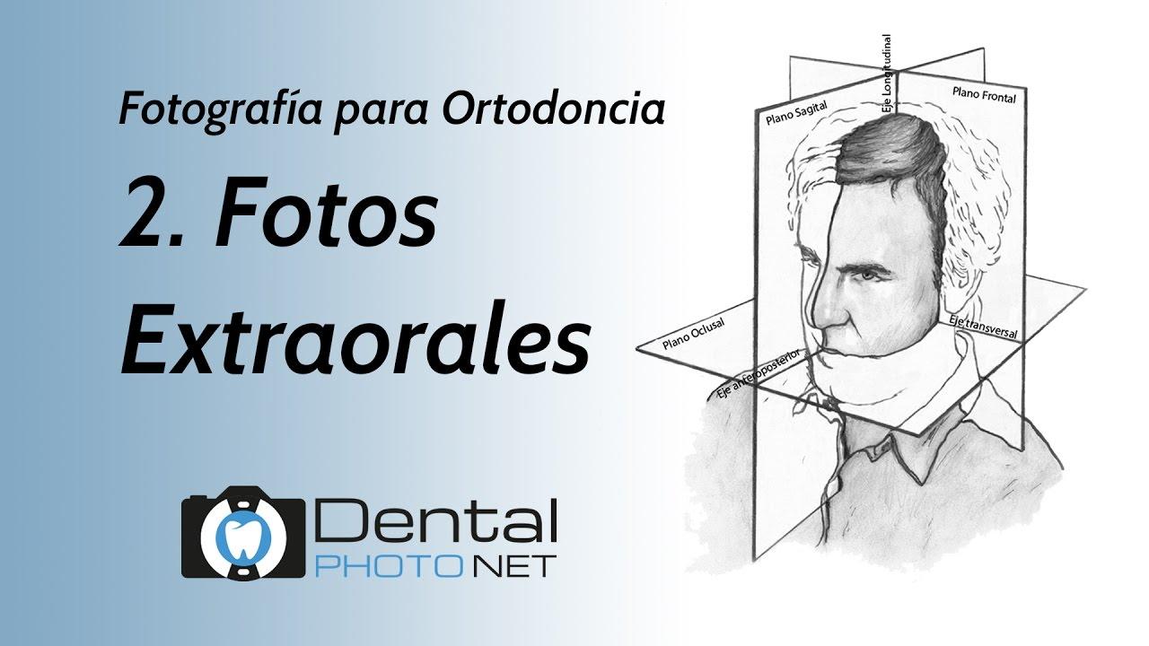 Fotografía para Ortodoncia. 2- Fotos Extraorales. - YouTube