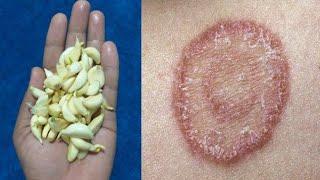 दाद खाज खुजली Ringworm कि 3 दिन में छुट्टी कर देगा   fungal infection ka ilaj   daad khaj khujli