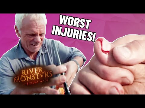 The WORST Injuries! (Part 1) | COMPILATION | River Monsters