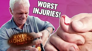 Worst Injuries: Part 1 - River Monsters