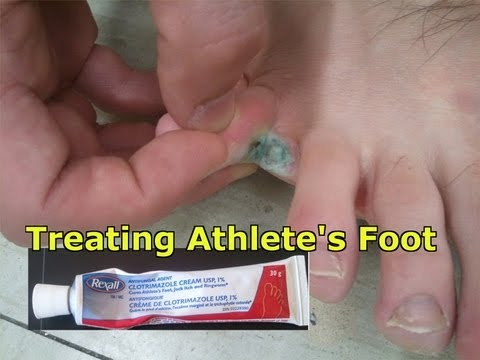 Athlete's Foot: What is it, how to treat it and how to avoid it! A must watch!