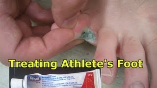 Athletes Foot What It How Treat It And How Avoid It Must Watch