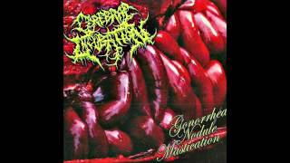 Cerebral Incubation-Gonorrhea Nodule Mastication (Full Album 2012 HD)