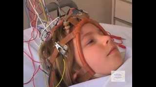 Reseau-Lucioles : déroulement de l'EEG