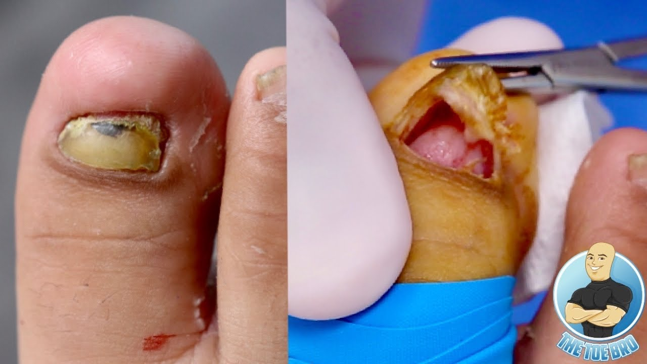 10 YEAR OLD BOY GETTING HIS TOENAIL REMOVED?!! ***SUPER BRAVE KID!!!***