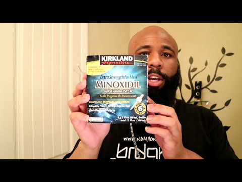 Growing My Hair Back Using Minoxidil | + Reviews.