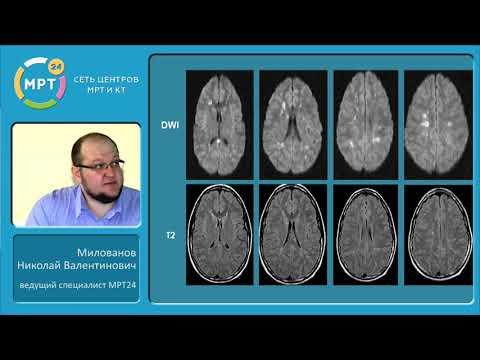 МРТ в диагностике травмы головы