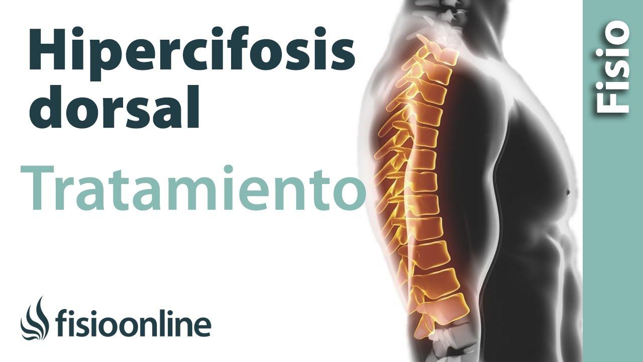 ejercicios para corregir la cifosis postural