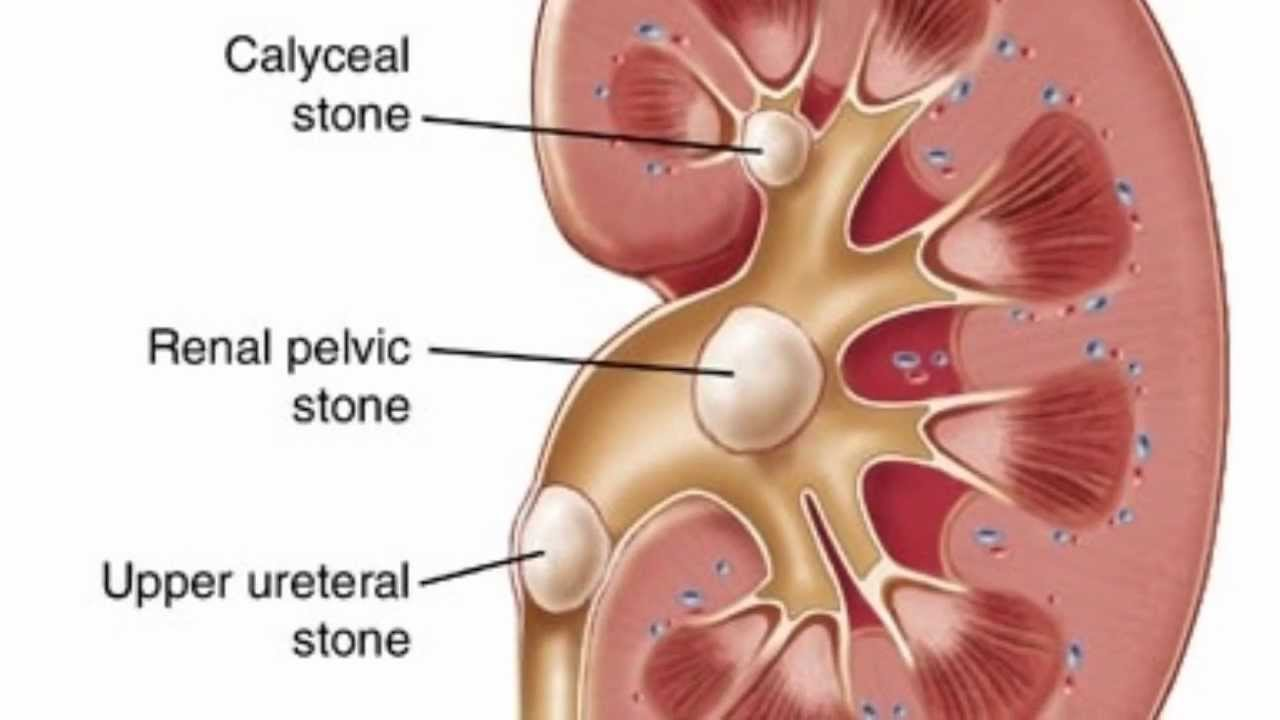Get Rid of Kidney Stones Naturally - The Wise Alternative - YouTube