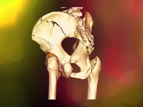 Pelvic bone fracture - iliac bone fracture