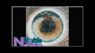 British artist finds parasitic worm in his eye and turns it into art