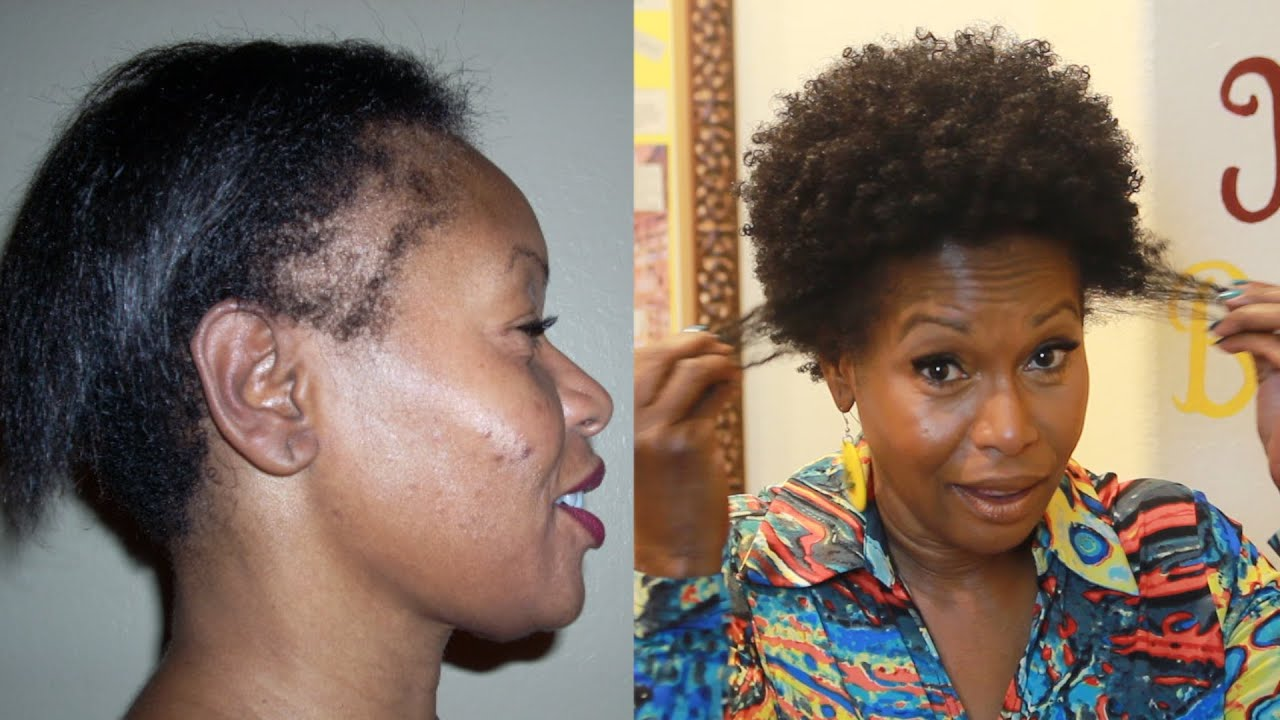 How I Repaired My Thinning Edges YouTube - Edges hair