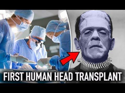First Successful Human Head Transplant 2018 | Dr Sergio Canavero (a.k.a Frankenstein)