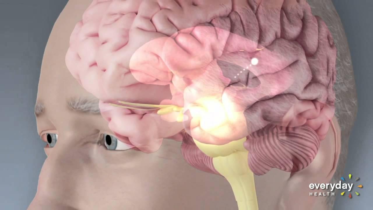 Laser Technology Helps Parkinsons Patients Walk