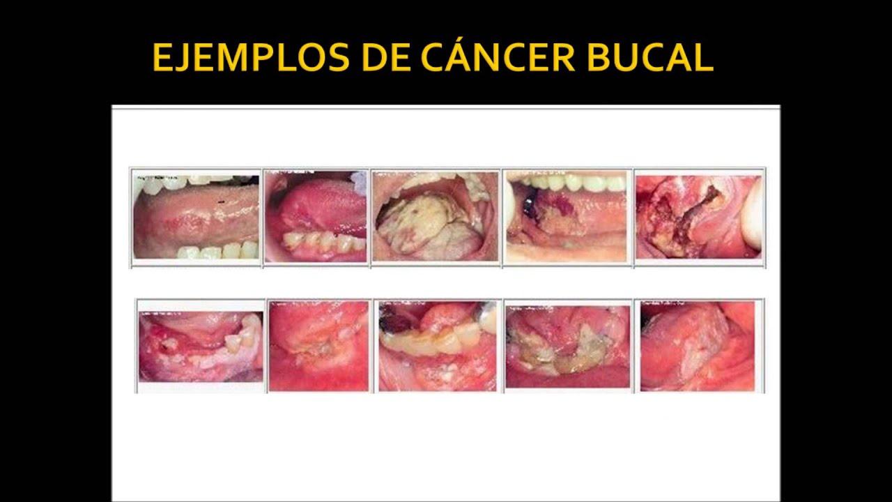 Resultado de imagen de cancer bucal